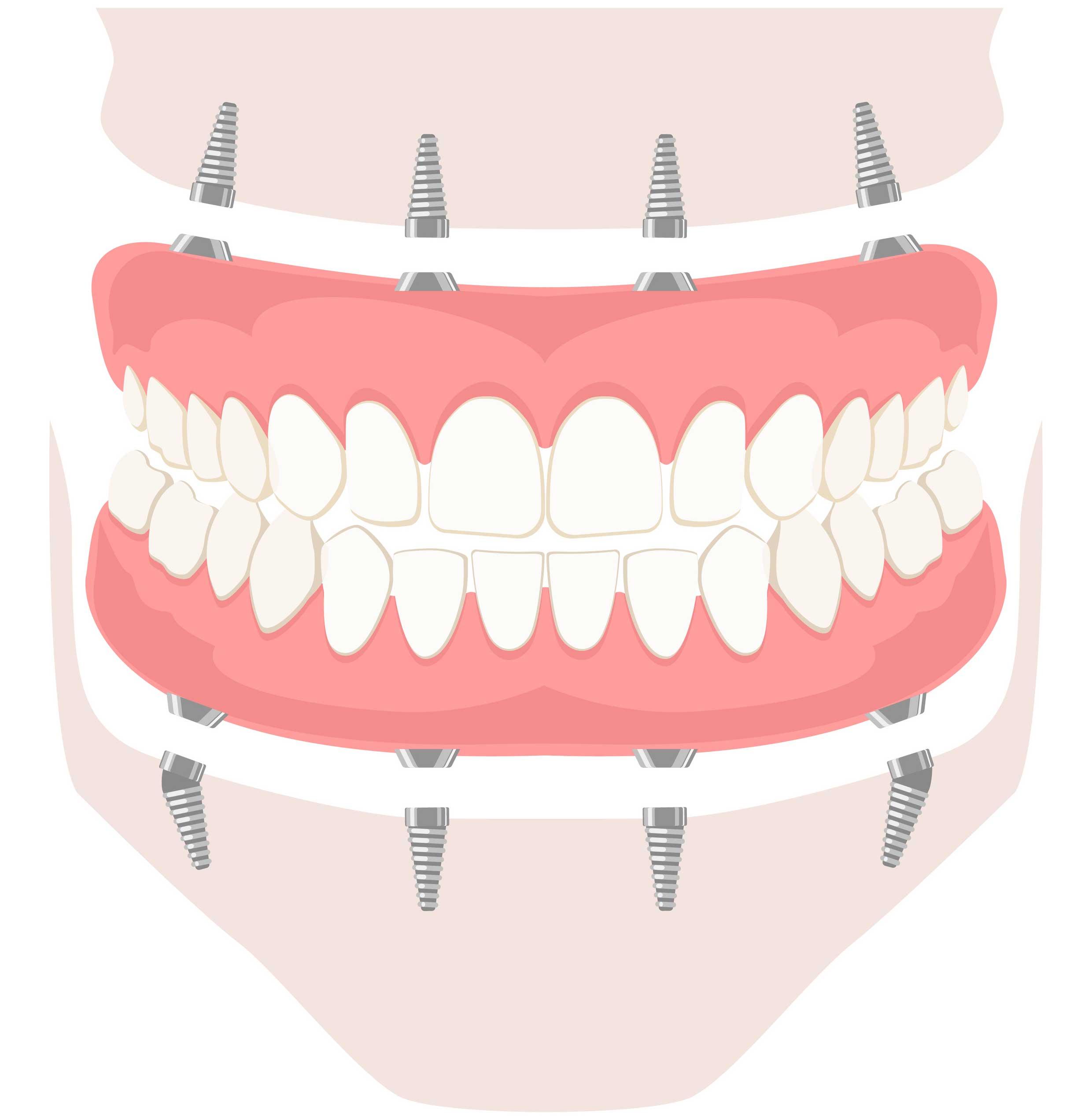 Illustration of implant based dentures.